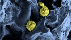 cancer.osor.remisie