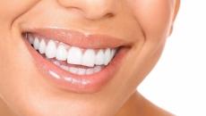 dinți.albi