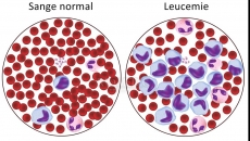 Leucemie