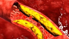 Artere colesterol