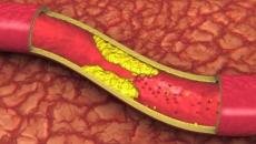 Artere blocate