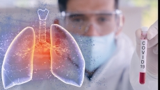 Pandemia de coronavirus încetineşte la nivel mondial, susţine OMS